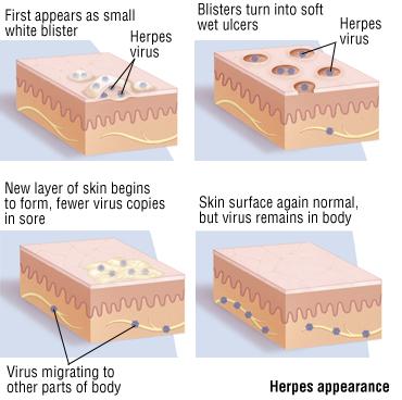 Herpes Sintomas